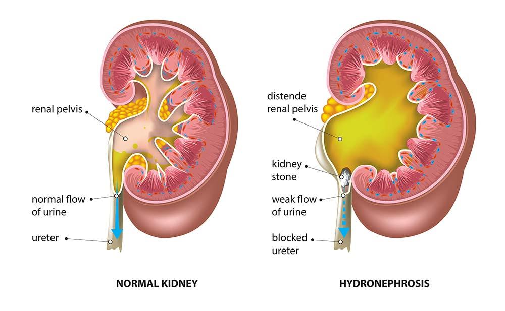 Kidney Stones Information & Treatment - North Georgia Urology Center